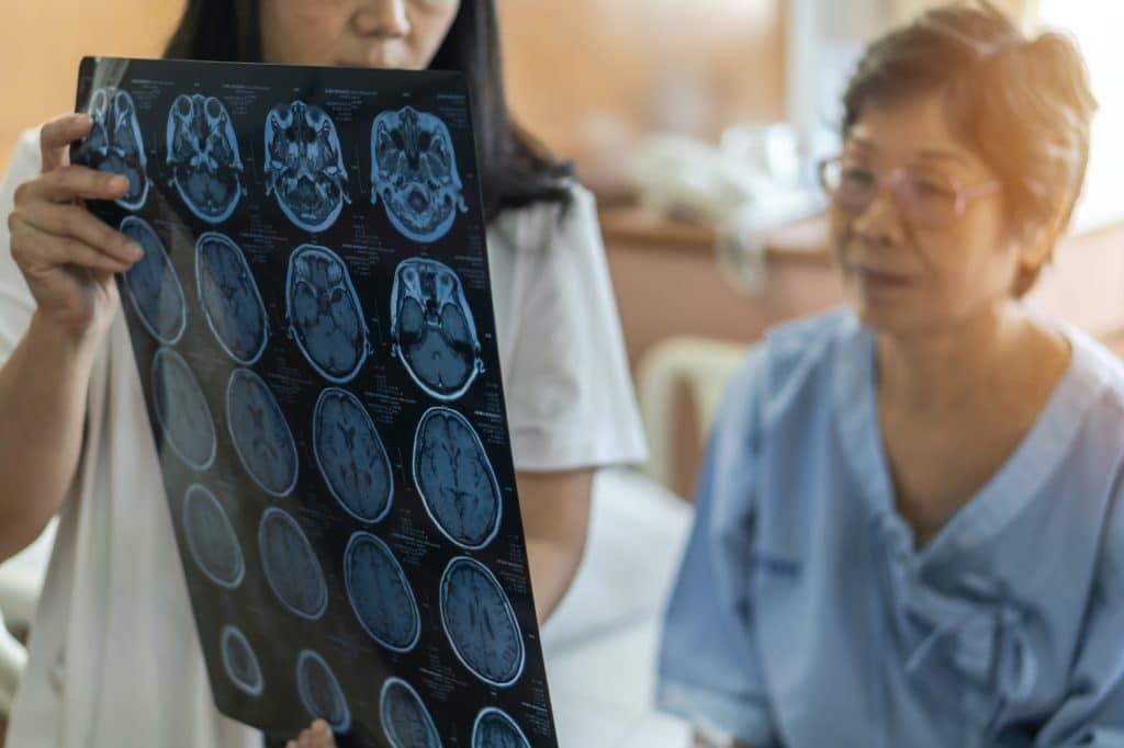 traumatic brain injury lawsuit